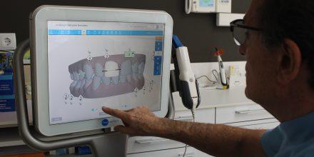 iTero: Avantatges de la tecnologia en l'odontologia