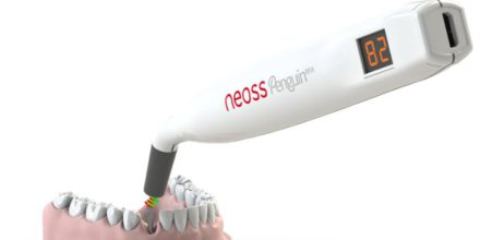 Nous dispositius tecnològics per monitoritzar l'osteointegració