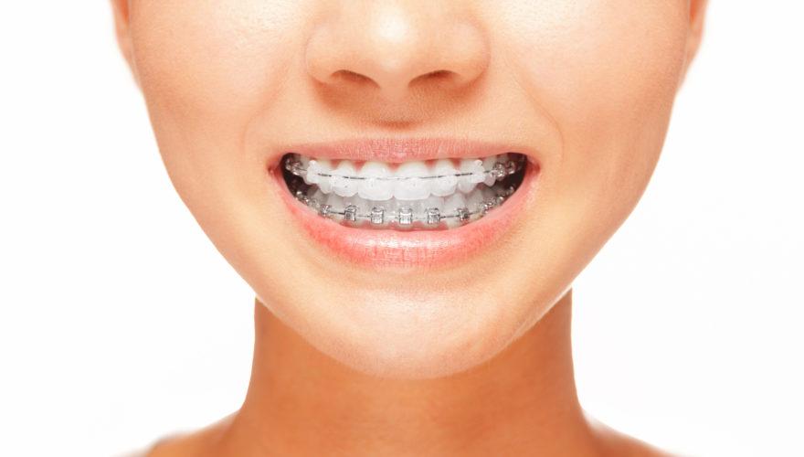 La importància de mantenir una bona higiene bucal durant l'ortodòncia