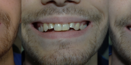Cas Real: Invisalign i Estètica Dental