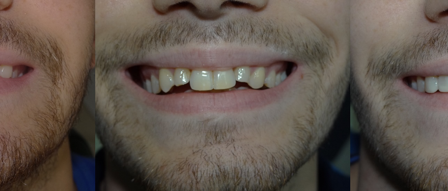 Cas Real: Invisalign i Estètica Dental